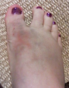 My foot Tuesday night, and the bruising still isn't fully developed ... might match the polish by the time it's done. Yeesh.